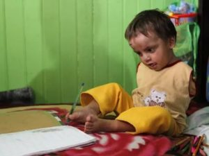 Дети инвалиды без рук и ног фото